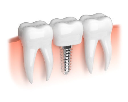 Dental Implant, Replace Tooth, Greensburg, New Stanton